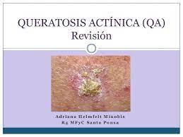 Queratosis actínica (qa)