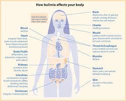 diagram of how bulumia affect the body bulumia is not eating to bulimia signs and symptoms