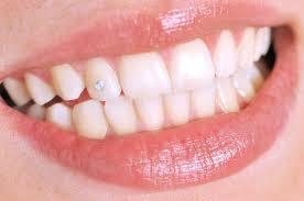 Teeth Setting Teeth Jewelry Videntis