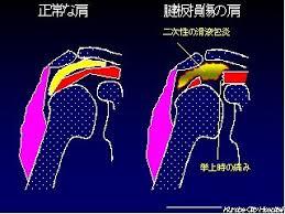 「腱板炎」の画像検索結果