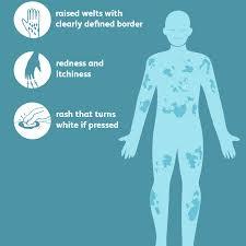 Urticaria (Hives): Signs, Symptoms, and Complications