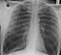 Pneumothorax X Ray Pt Rk Lung Bullae Caused By Cannabis Smoking Complicated By