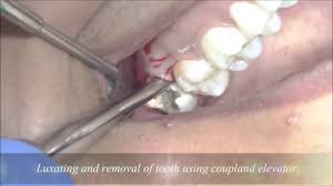 simple technique to remove upper wisdom tooth by coupland elevator