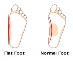 Flat Footed Causes And Risk Factors Of Flat Feet Or Fallen Arches
