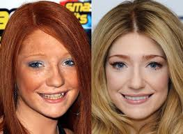 6 nicola roberts how do these celebrities bee beautiful by the help of