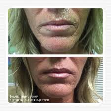 fillers gallery clearwater priority