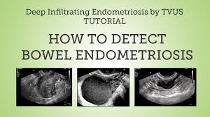 Endometriosis and adenomyosis are similar but separate conditions. Deep Infiltrating Bowel Endometriosis Detection By Tvus Tutorial Youtube
