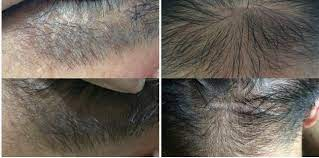 emu oil for hair loss emuse pure