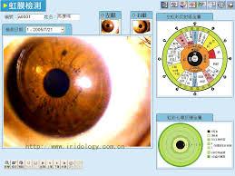 Iridology Diagnosis Chart Eye Diagnosis The Eye Si Gh T