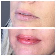 permanent lips jemma jarman