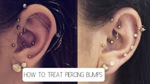 Treating Piercing Bumpskeloids With Tea Tree Oil Youtube