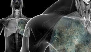cara mengobati infeksi paru-paru