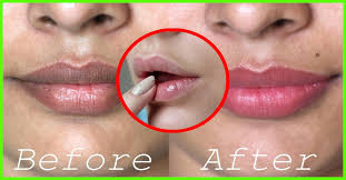 cure black spots on the lips