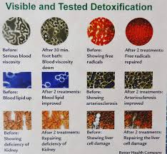 Foot Detox Machine Color Chart Ion Detox Ionic Foot Bath Spa Chi Cleanse Promotional Poster