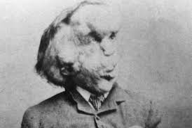 new calls to bury the bones of elephant man joseph merrick  new calls to bury the bones of elephant man joseph merrick