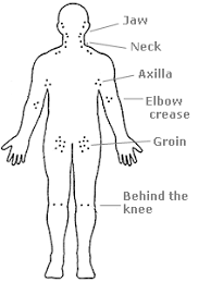 How To Check Your Lymph Nodes