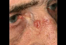 basal cell carcinoma nose
