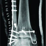 Trimalleolar Fracture Dislocation Of The Ankle With A Double