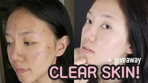 finally clear skin korea dermatology acne treatments giveaway 한글자막