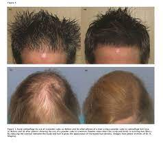 When hair follicles are damaged or irritated, it can cause itching or tingling, as well as areas of hair thinning. A Review Of Scalp Camouflaging Agents And Prostheses For Individuals With Hair Loss
