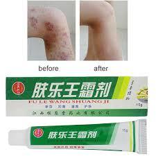 <b>Herbal Material</b> Psoriasis <b>Creams</b> Dermatitis Eczema Pruritus ...