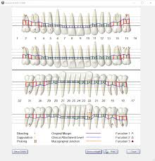 Dental And Periodontal Charting Open Dental Software Graphical Perio Chart