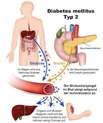 diabetes ii symptome