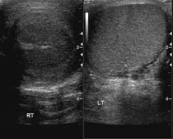 testicular torsion ultrasound. figure 2a: testicular torsion with abnormal parenchyma. a) transverse gray scale image of both testes demonstrates hypoechogenicity the right testis due ultrasound