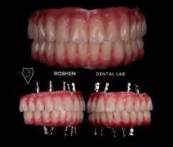 teeth tooth toothless extraction cirugiabucal surgery dental dentist dentistry dentistrymyworld dentalhygiene dentalassistant smiledesignschool