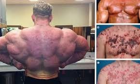 Steroids Side Effects What Are The Side Effects Of Steroids In Bodybuilding