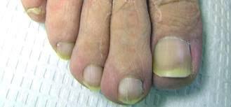nail fungus pariser dermatology