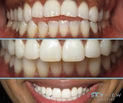 invisalign smile correction braces smile transformation teeth straightening skyview dentistry