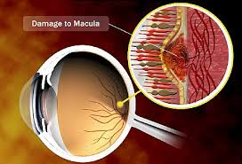 Age Related Macular Degeneration Eye Chart Video On What Is Macular Degeneration