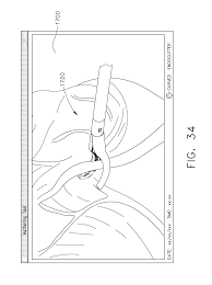 Us9820738b2 surgical instrument prising interactive systems patents