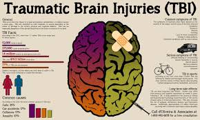 Traumatic Brain Injuries Occur When The Impact Of A Rapid