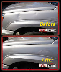 Auto Dent Removal Pdr Paintless Dent Removal