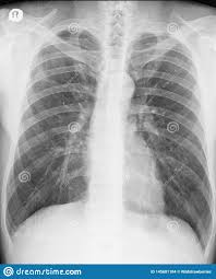 Pneumothorax X Ray Chest X Ray Posteroanterior View Two Years After