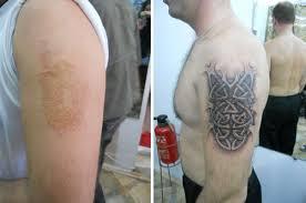 тату на шрамах татуировки 22 фото
