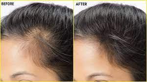 make vitamin e hair oil to regrow hair