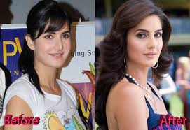 Image result for Katrina Kaif lip surgery