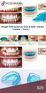 this teeth straightener for teeth straightening over bite