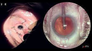 Cataract Extraction With Phacoemulsification And Posterior Chamber