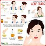 what to use for acne