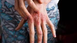 types of eczema atopic dermais