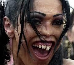ugly-teeth | Bajiroo.com via Relatably.com