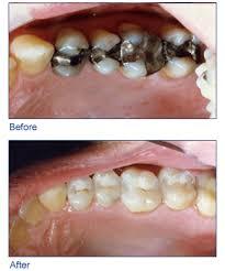 Dental Inlay Bartz Bartz Dental Inlays And Onlays
