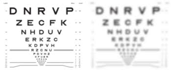Presbyopes Visual Acuity From Refractive Error Problems With