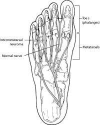 Mortons Neuroma Intermetatarsal Neuroma Foot Health Facts