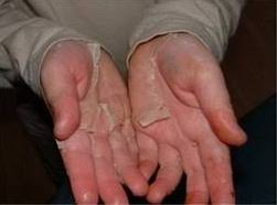 Skin on my hands peeling