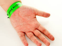 Associated with latex allergy